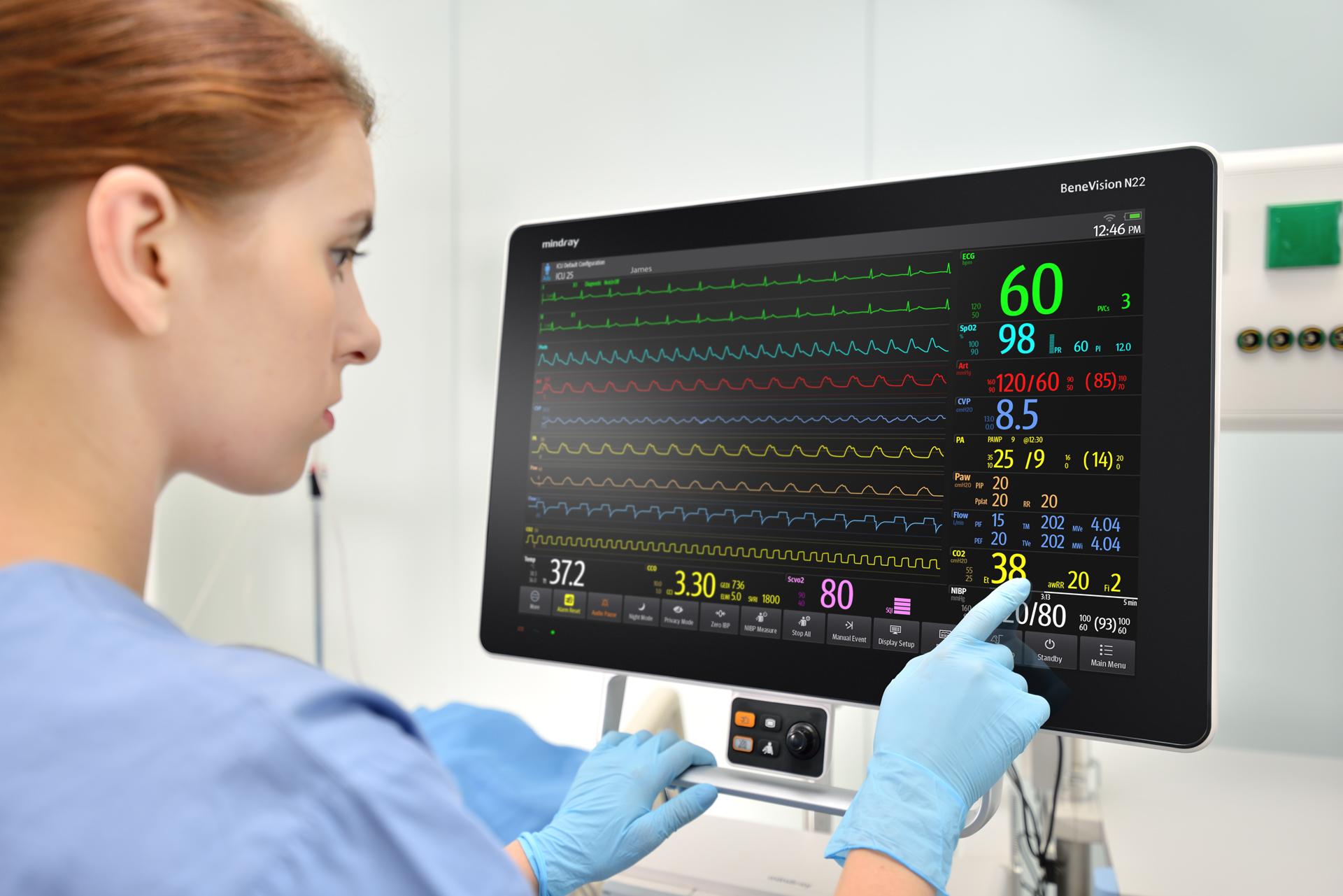 Монитор пациента BeneVision N22/N19